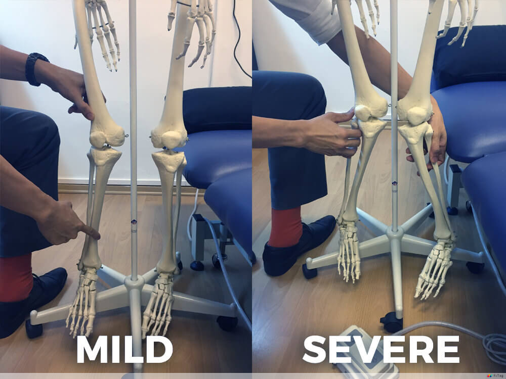 2 sole clinic knock knees